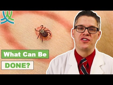 How To Treat Lyme Disease