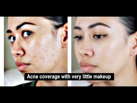 Covering acne without piling makeup on | pimples, scars, dark spots, and other blemishes