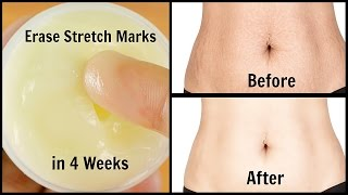 Erase Stretch Marks in 4 Weeks   Quick & Easy   100% Works