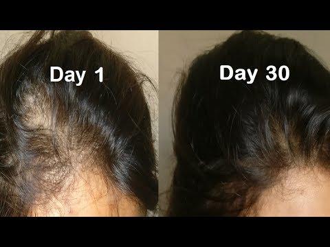 Hair ReGrowth Serum - Get Long hair with Onion hair oil & Amla hair oil, onion juice for Hair