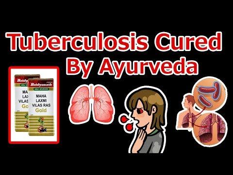 Tuberculosis - आयुर्वेद से करें क्षय रोग को जड़ से खत्म केवल 5 दिनों में।