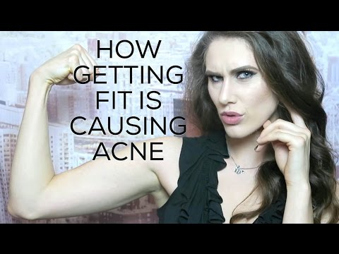 😱 How Getting Fit Is Giving You #Acne + INSPIRE Magazine Is Here!   Cassandra Bankson