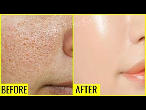 In Just 3 Days Reduce Large OPEN PORES Permanently | OPEN PORES Treatment