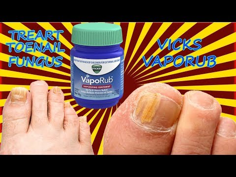 How to cure toenail fungus with vicks -