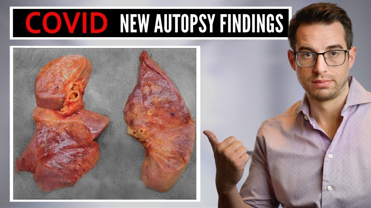 COVID Autopsy Findings - What Doctors Are Learning From Autopsy Findings of COVID 19 Patients
