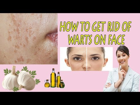 How to Get Rid of Flat Warts | Flat Warts On Face Naturally || Home Remedies For Flat Warts