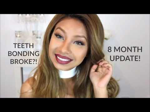 TEETH BONDING | FIXING GAP TEETH WITHOUT BRACES | 8 MONTH UPDATE