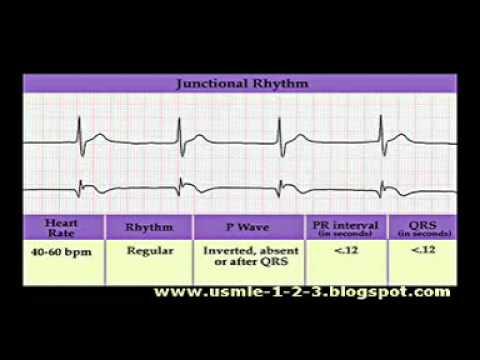 ECG Sinus, Atrial, Junctional Rhythms