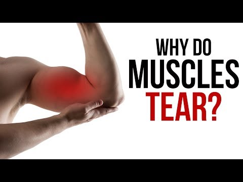 Why Do Muscles Tear?