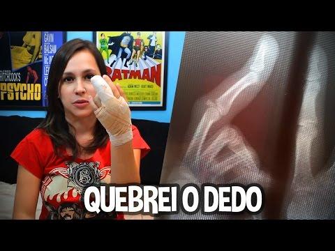 QUEBREI O DEDO!