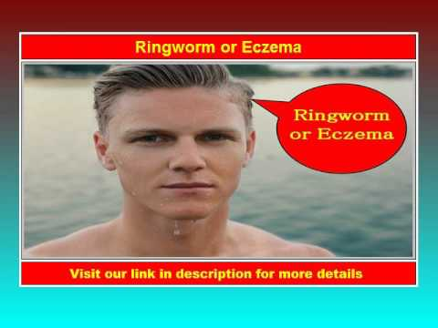 Ringworm or Eczema - See Now!