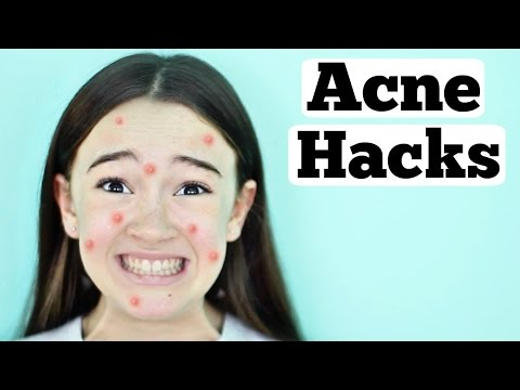 Acne Life Hacks |  Pimples, Blemishes, Acne Hacks for Teens  | Fiona's Fresh Face  | Fiona Frills