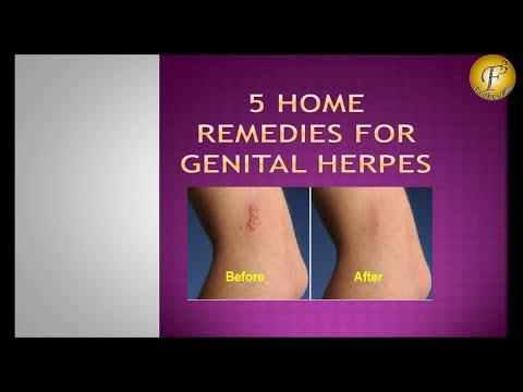 5 HOME REMEDIES FOR GENITAL HERPES II जननांग दाद के  5 घरेलू उपचार II