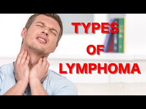What Are The Types of Lymphoma? Lymphoma Lymphatic Leukemia Lymph Node Cancer