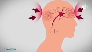 თავისა და წელის ქრონიკული ტკივილის სტატისტიკა და დიაგნოსტიკა