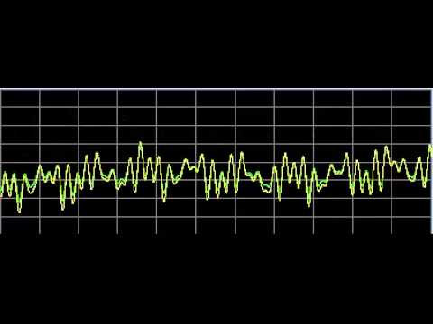 Autism (Autistic Disorders)-Rife Frequencies
