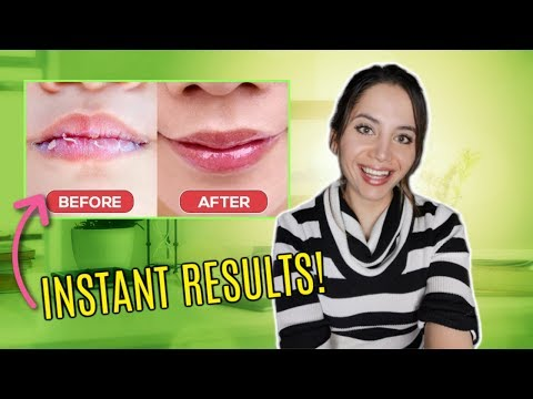 How To STOP Peeling Lips FAST (NOT VASELINE)  | 3 EASY Steps