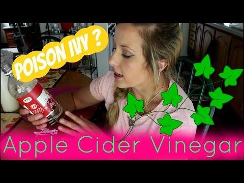 Using Apple Cider Vinegar to treat poison Ivy or Oak?!