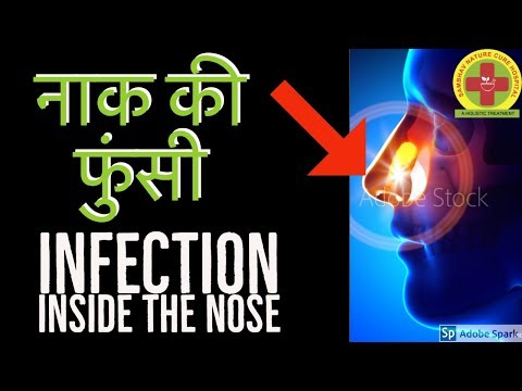 How to cure pimple inside nostrils (नाक की फुंसी) | Nose Sores by Acupressure/Acupuncture Points