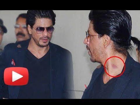 OMG ! Shahrukh Khan Got A Love Bite On His Neck - A Hickey ?