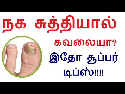 Best Natural Home remedies for Nail fungus in hand and leg in tamil | nail tips in Tamil