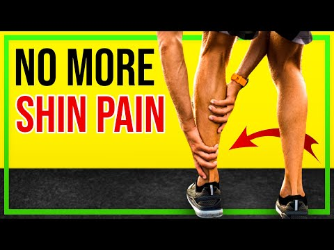 Shin Splints Stretches & Exercises for Runners [Ep18]