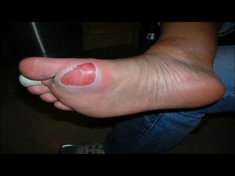 HOW TO GET RID OF FOOT BLISTERS IN NO TIME