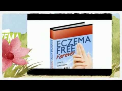 4 Easy Tips to Cure Eczema On Breast Rash!