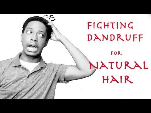 GETTING RID OF DANDRUFF FOR NATURAL CURLY HAIR   WINSTONEE