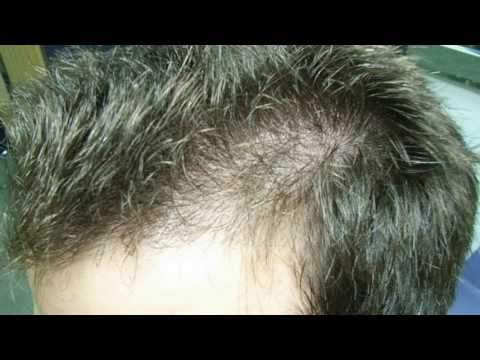Aloe Vera Treatment For Hair Loss And Re Growth