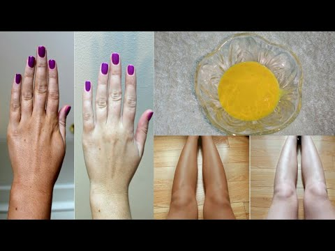 HOW TO REMOVE SUN TAN FROM HANDS & LEGS NATURALLY- GET FAIRER HANDS & LEGS INSTANTLY| HOME REMEDY