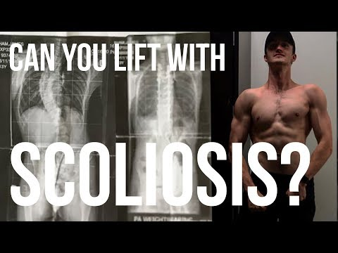 How I lift weights / Exercise with Scoliosis / Spinal fusion