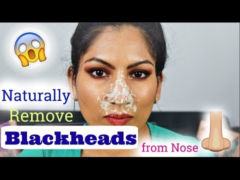 BLACKHEADS on Nose| Remove Naturally at Home| Quick and Easy DIY| ब्लैकहेड्स से छुटकारा