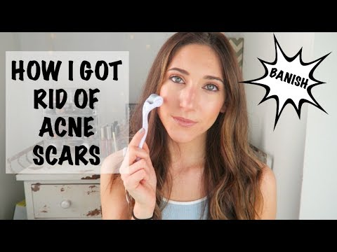 HOW I GOT RID OF MY ACNE SCARS | THE ONLY THING THAT WORKED