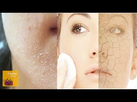 Dry Dull Skin to Smooth Glowing Skin | Remedy for Dry Flaky Skin in Winters