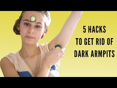 5 WAYS TO GET RID OF DARK ARMPITS