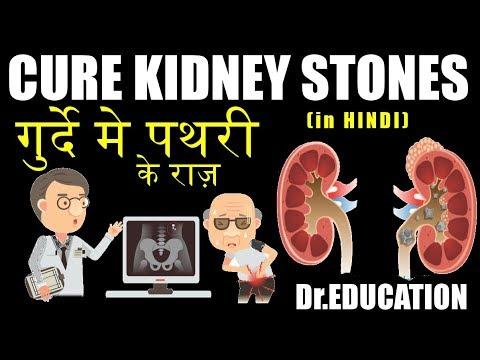 KIDNEY STONES DECODED | गुर्दे मे पथरी के राज़-जो कोई डॉक्टर नहीं बताता (HIN) by Dr.Education