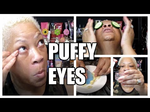 11 EASY NATURAL HOME TREATMENTS TO GET RID OF PUFFY EYES | REQUESTED