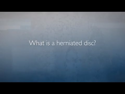 Minimally Invasive Spine Surgery: Microdiscectomy | Herniated Disc FAQ