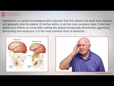 Can Natural Alzheimer's Treatment  cure Alzheimer's ?