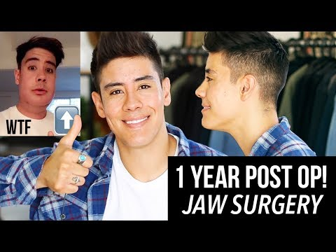 1 YEAR POST OP! DOUBLE JAW SURGERY *BEFORE & AFTER FOOTAGE*  | JAIRWOO
