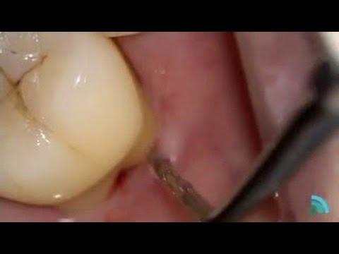 Healthy Teeth Videocase 3