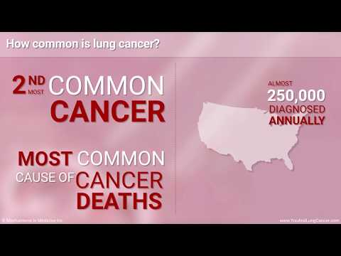Understanding Small Cell Lung Cancer