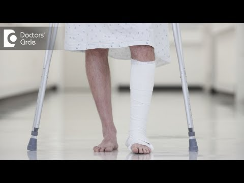 Can you walk with a Broken ankle? - Dr. Hanume Gowda