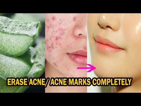 How to use *Aloe Vera Gel* to get rid of *Acne & Acne Scars* Completely.
