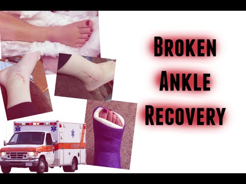 Broken Ankle Recovery: From Surgery to Today (w/ Pictures)