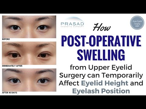 How Healing from Asian Eyelid Surgery Can Cause Temporary Changes in Eyelid and Eyelash Position