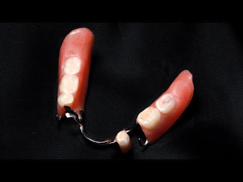 Cleaning Partial Dentures