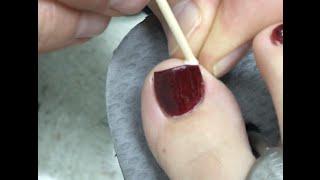 Aqua S Ingrown Toenail Trick Gumby Jams