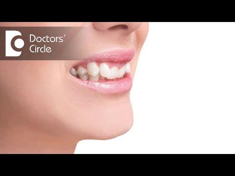 Can Crossbite cause headaches?- Dr. Prabhavathi Vishwanath